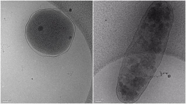 Cryo-electron microscopy images showing Prochlorococcus (left) and Alteromonas (right). The interaction between these two globally important microbes can be altered by ocean acidification. (Images: Terje Dokland, University of Alabama Birmingham).